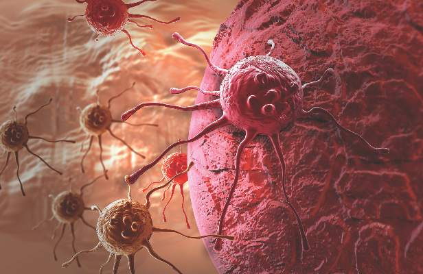 Report: Heterogeneity Of Ovarian Cancer Should Drive Research, Treatment