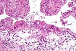 Analyzing Copies Of Genes May Offer New Therapeutic Approaches For Ovarian Cancer