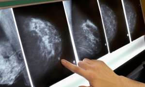 Women With BRCA Gene Mutations Given Clearer Picture of Breast and Ovarian Cancer Risk