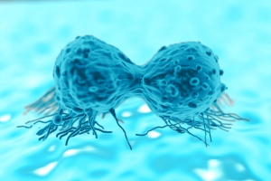 Ovarian Cancer Could Be Next Application For CAR T-Cell Therapy