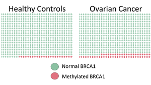 BRCA1 Methylation Tied to Ovarian Cancer Risk
