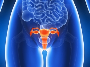 HIPEC Shows Survival Benefit for Advanced Ovarian Cancer